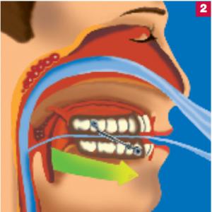 antischnarch-schiene-2