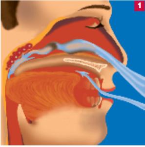 antischnarch-schiene-1